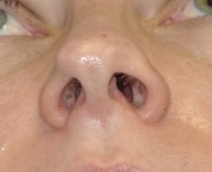 Asymmetric Nasal Tip