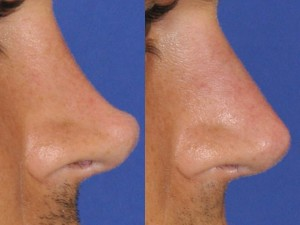 Overreduced Nasal Bridge